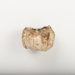 Barnacle, Coronulidae, off a whale's lip; 2008.75.12