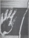 Hands / The Echo Of the Hand Picked Up By a Telecopier Across the Room; Sheridan, Sonia Landy; ca. 1974; 1981:0116:0024