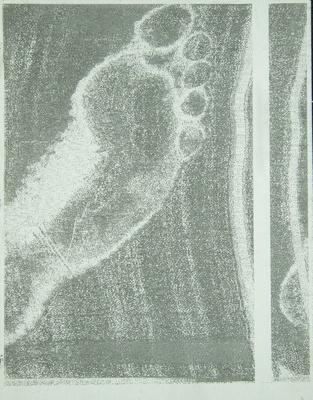 Foot; Sheridan, Sonia Landy; 1973; 1981:0117:0016