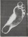 Foot; Sheridan, Sonia Landy; 1973; 1981:0117:0017