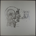 Untitled [Medical drawings]; Schumacher, Mike; May 1, 1970; 1972:0096:0043
