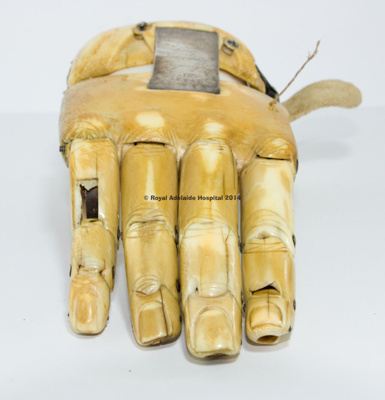 Corporal Coles prosthetic hand